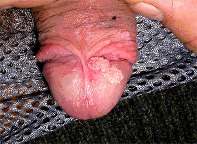 Остроконечные кондиломы на головке полового члена.