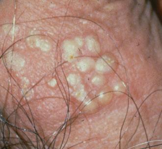 Какое лечение применяется при генитальном герпесе Все лечение сводится к устранению очагов инфекции.